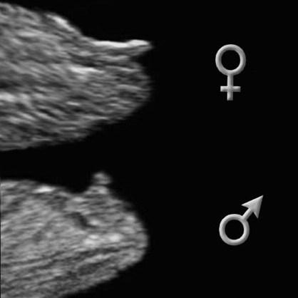 danmark dating nf scanning køn