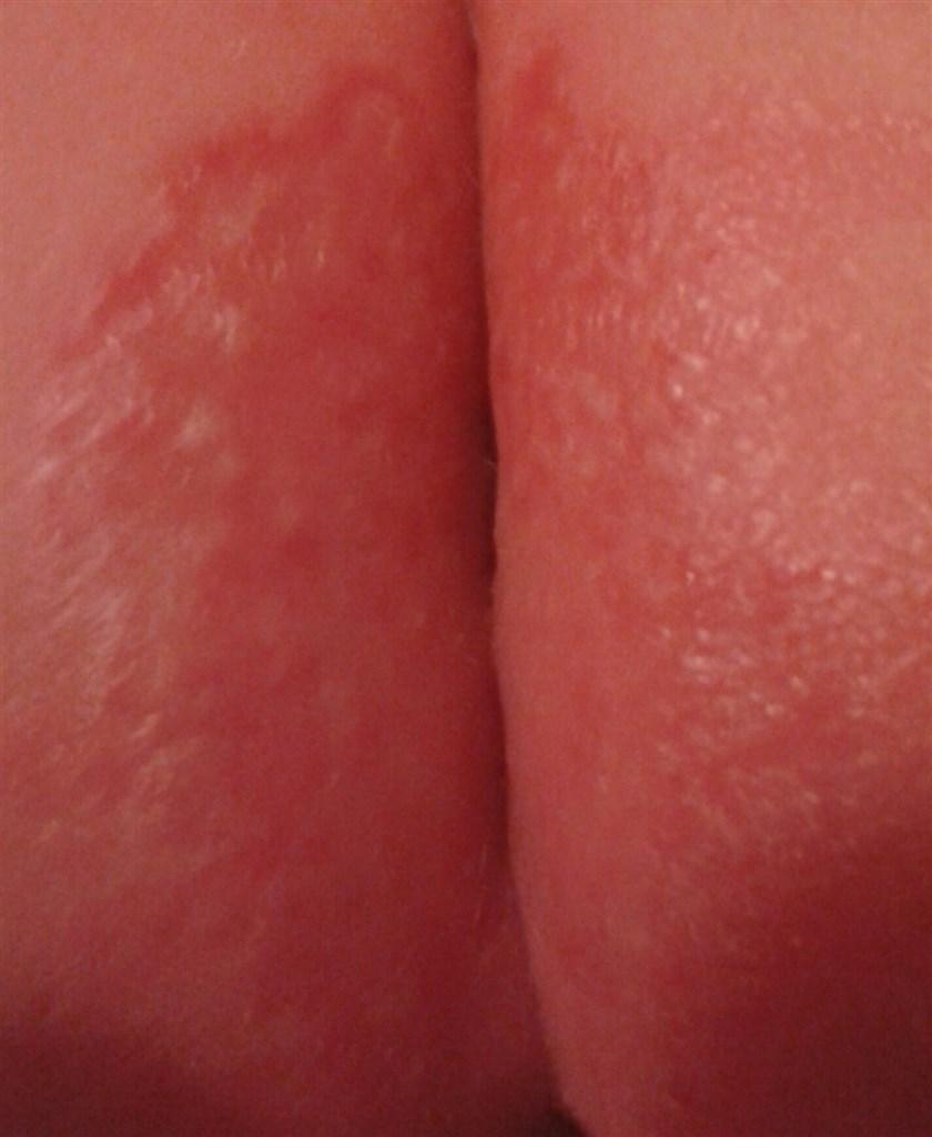 tør hud på fødderne