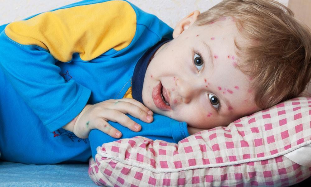 Hjemme med barn syg? Her er 6 ideer til, hvad I kan lave