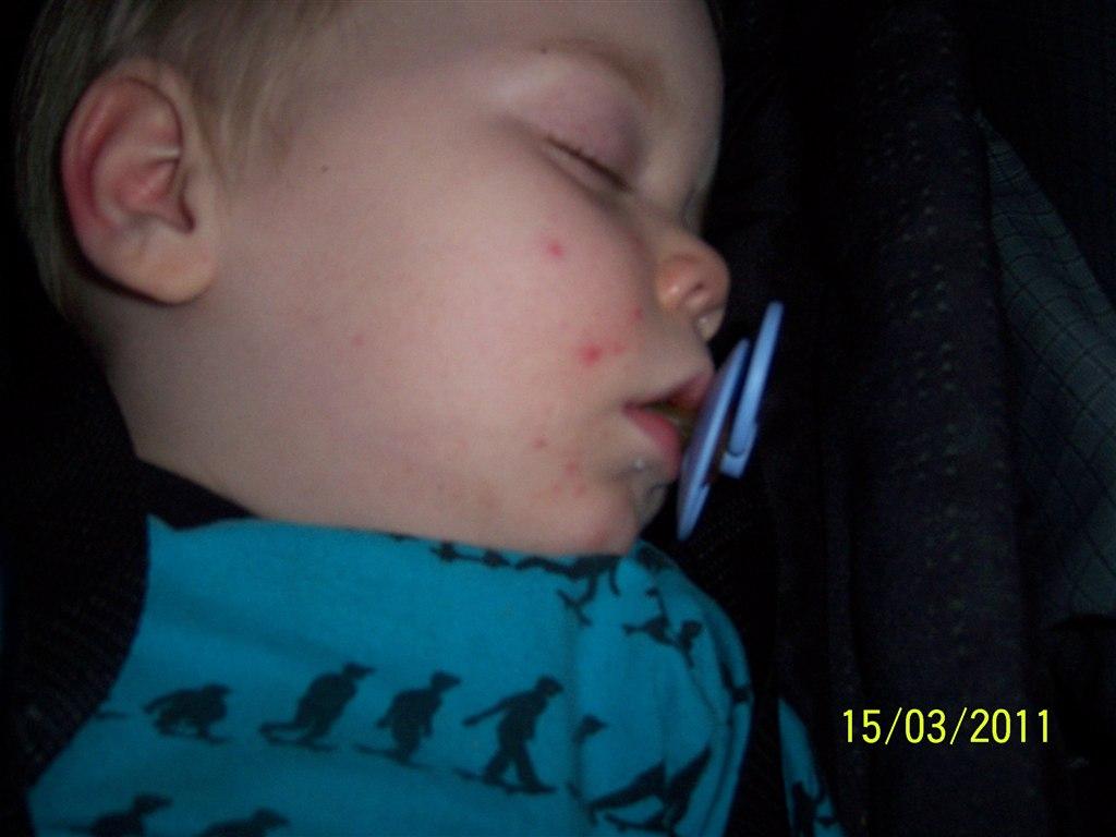 baby røde pletter i ansigtet
