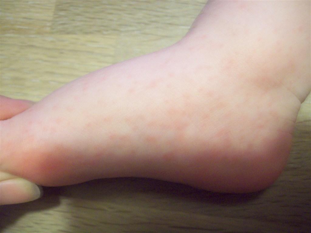 Under bitte små huden prikker røde Keratosis Pilaris