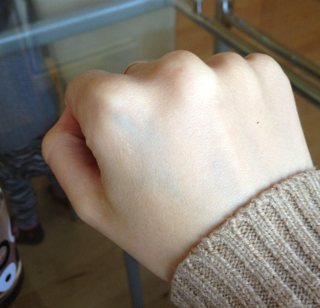 blodprop i hånden
