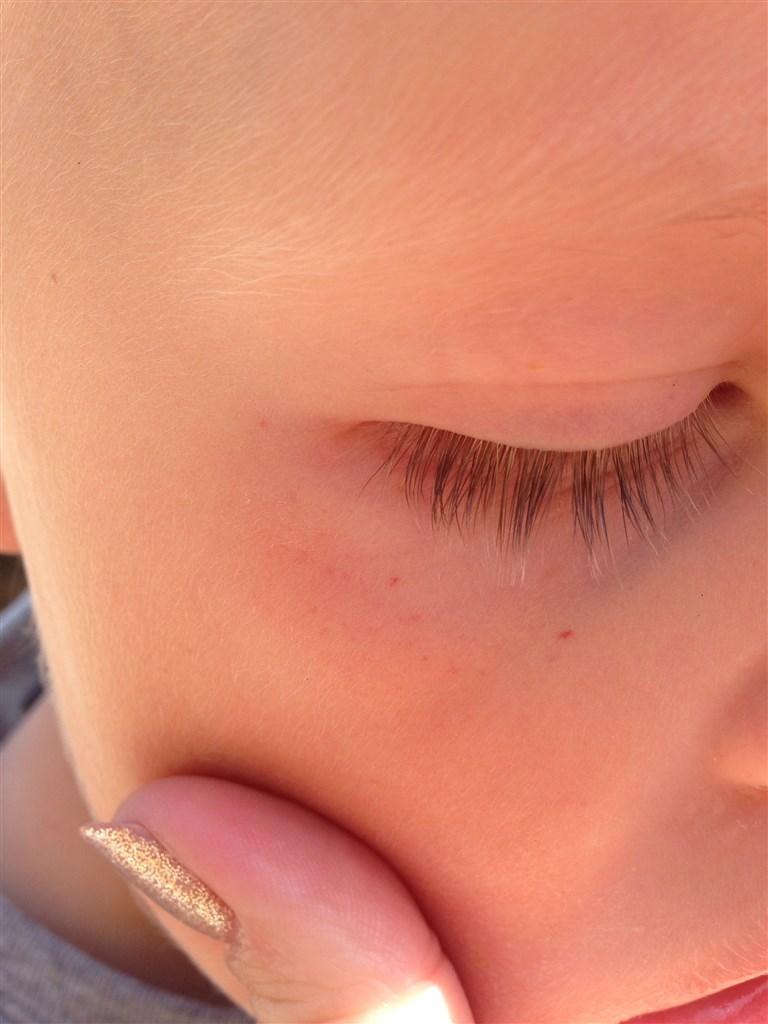 røde prikker under øjnene