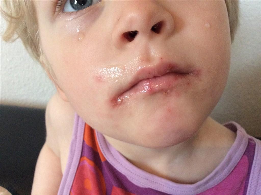 Ved mundvigen sår sår ved