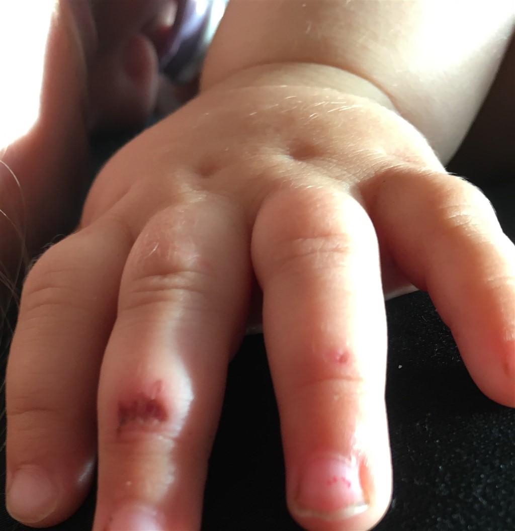 sår på finger
