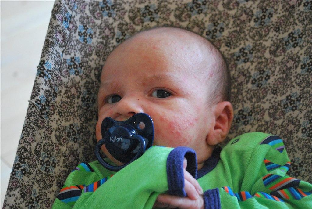 baby bumser i ansigtet